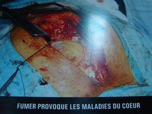 Maurice-3-coeur