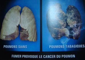 Maurice-7-cancerpoumon