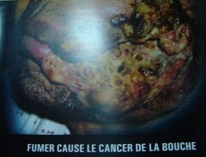 Maurice-6-cancerbouche