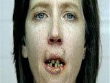 Mouthcancer