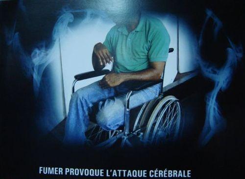 Maurice-1-attaque cerebrale