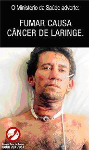 Brazil2_larynxcancer